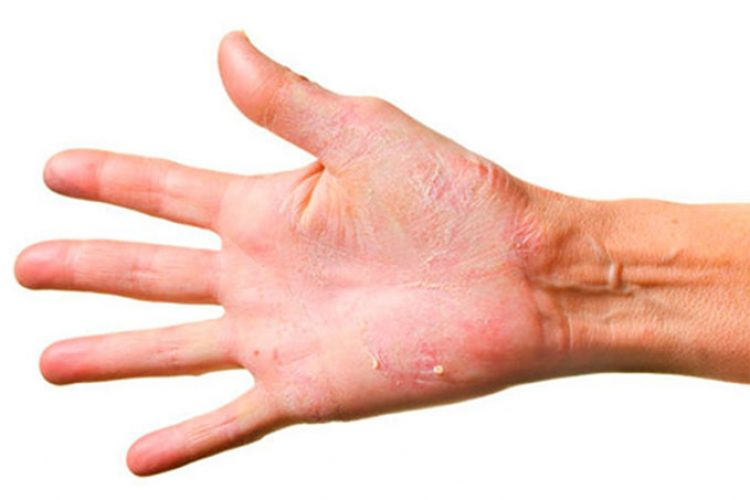 Rituximab es prometedor para el tratamiento de dermatitis herpetiforme