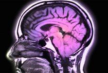 Trastorno neurológico grave con la administración de BIA 10-2474
