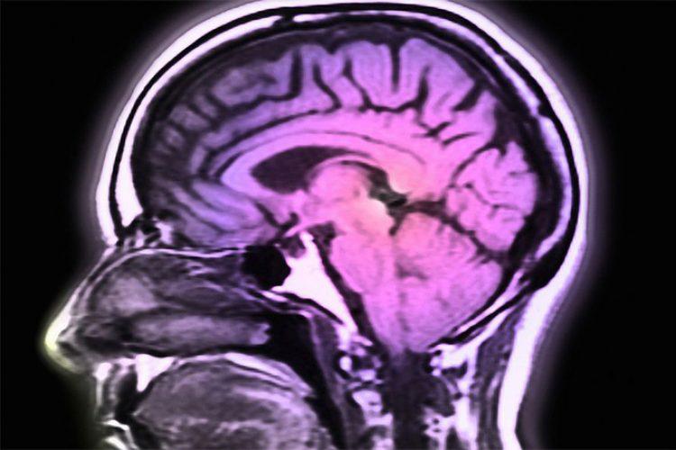 La levodopa inhalada puede aliviar rápidamente los síntomas del Parkinson