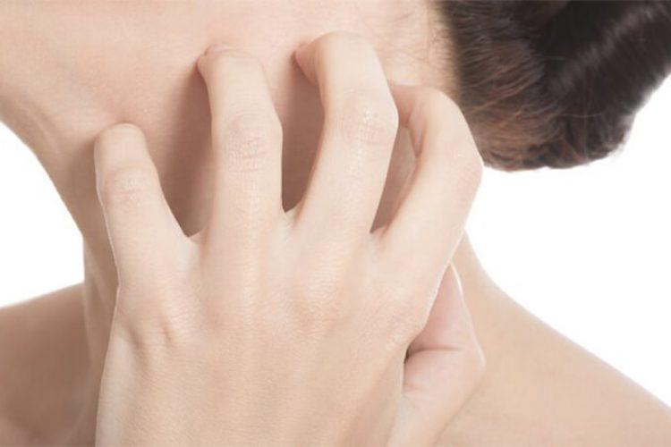 Psoriasis –  Los factores de riesgo del deterioro cognitivo en pacientes con psoriasis