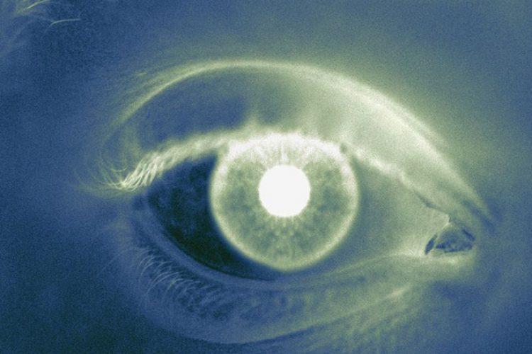 La terapia basada en topotecán es benéfica en el tratamiento de retinoblastoma