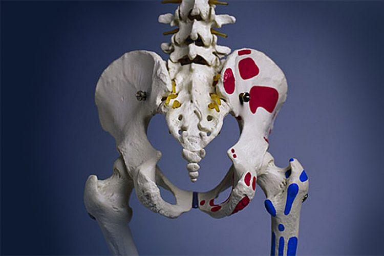 La gota se asocia con un aumento en el riesgo de fractura de cadera en mujeres