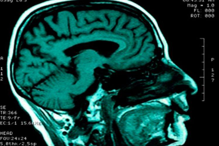 El nervio vago podría tener un papel en la lucha contra la enfermedad inflamatoria