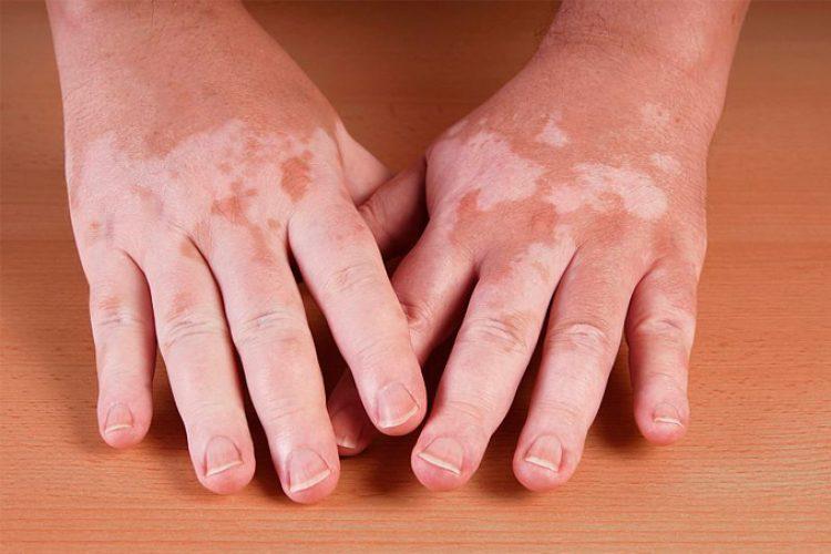 Características clínicas de vitiligo relacionadas a la edad de aparición de la enfermedad