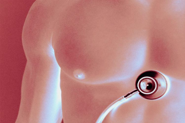 La angiografía es benéfica para el tratamiento de angina inestable