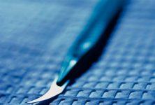 Variación marcada en el número de etapas por caso en cirugía de Mohs