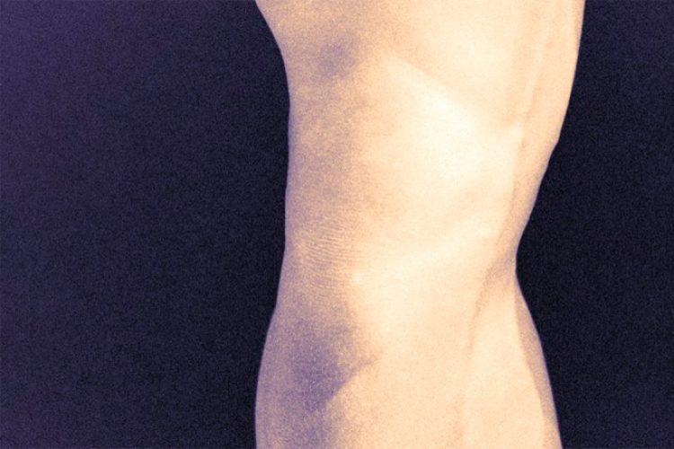 Crepitación ligada a incidencia de osteoartritis sintomática de rodilla