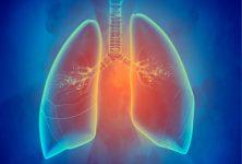 Congreso ERS: Asma grave, definiendo los fenotipos clínicos