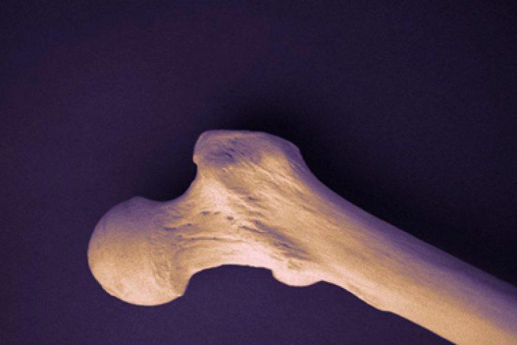 ACP: Recomendaciones actualizadas para el tratamiento de baja densidad ósea