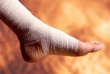 Las úlceras e infecciones en el pie diabético aumentan significativamente la carga por atención médica