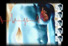 El riesgo de eventos cardiovasculares es similar con y sin diabetes