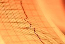 Los factores de riesgo explican la mayor parte del riesgo de insuficiencia cardíaca en la incidencia de fibrilación atrial