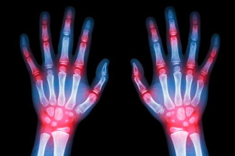 Ciertos criterios pueden ser mejores que otros en la evaluación de la artritis reumatoide