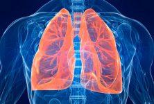 Se identifica una asociación protectora del asma contra la sepsis