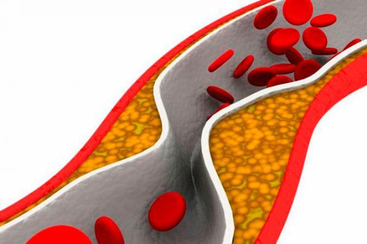 Un dispositivo de protección contra embolia es útil después de angioplastia con stent en la arteria carótida