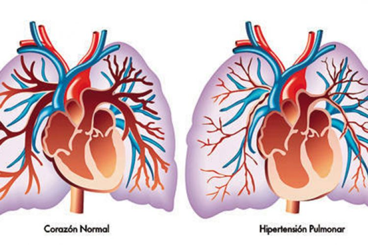 Hipertensión arterial pulmonar: clasificación de los pacientes