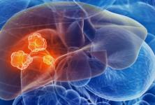 Nivolumab en el tratamiento del cáncer de hígado