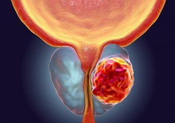 Avances en el tratamiento del cáncer de próstata resistente a la castración.
