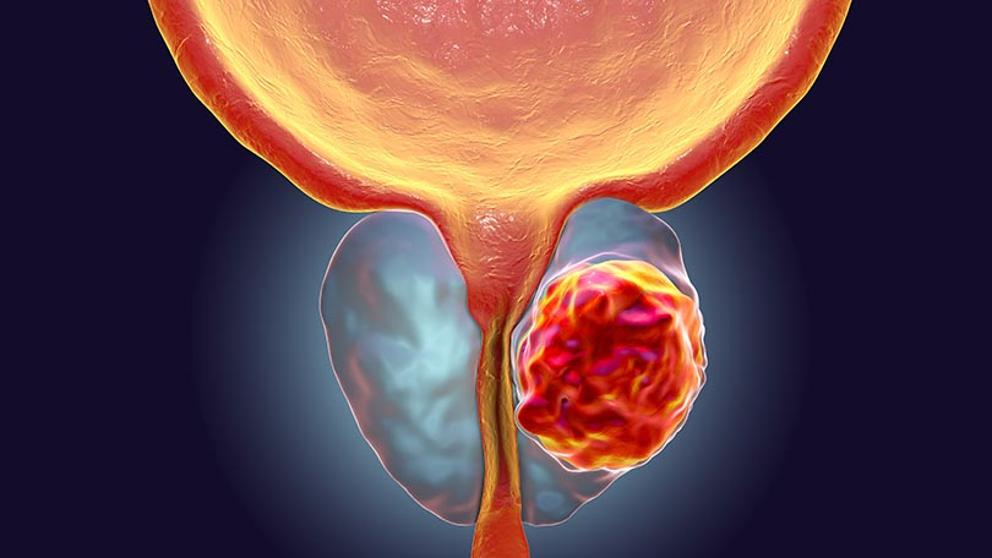 cancer de prostata imagenes)